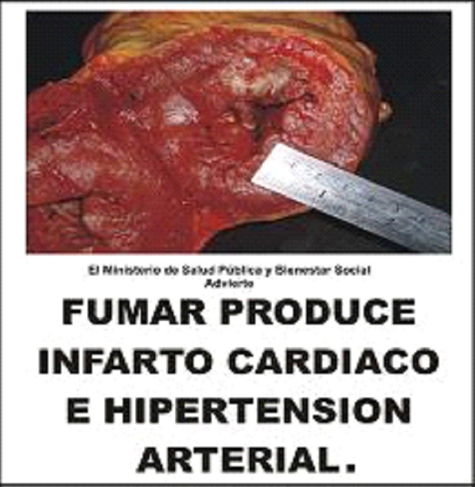 Paraguay 2009 Health Effects Arteries - cardiac infarction and arterial hypertension, diseased artery image, gross