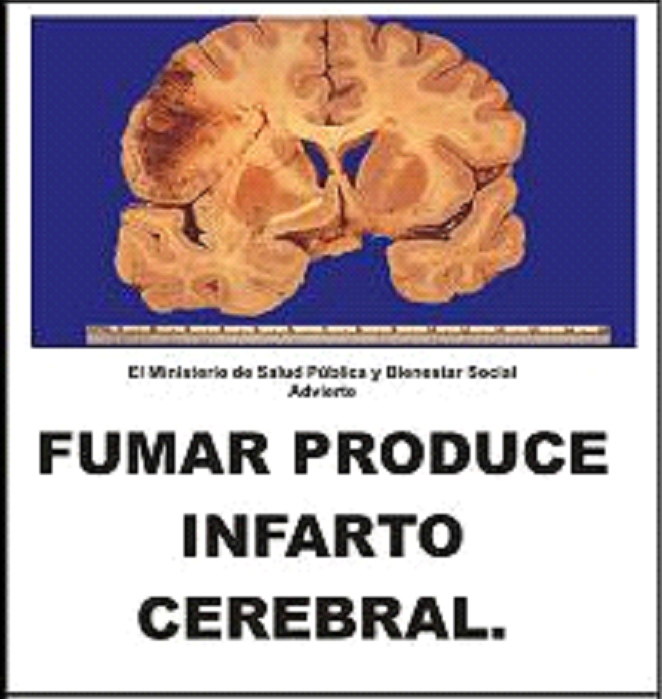 Paraguay 2009 Health Effects Stroke - Cerebral Infarction, brain scan