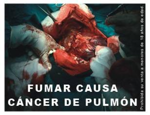 Peru 2008 Health Effects Lung - Lung Cancer, surgery, graphic