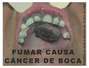 Peru 2008 Health Effects Mouth - mouth cancer, graphic