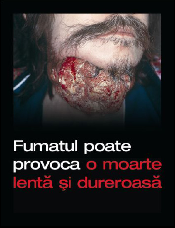 Romania 2008 Health Effects death - diseased organ, gross, Romania
