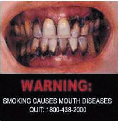 Singapore 2006 Health Effects mouth - mouth disease, diseased organ, gross