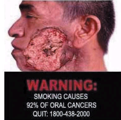 Singapore 2006 Health Effects mouth - oral cancer 2, diseased organ, gross