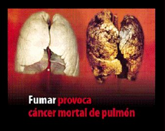 Spain 2011 Health Effects lung - diseased organ, lung cancer, gross