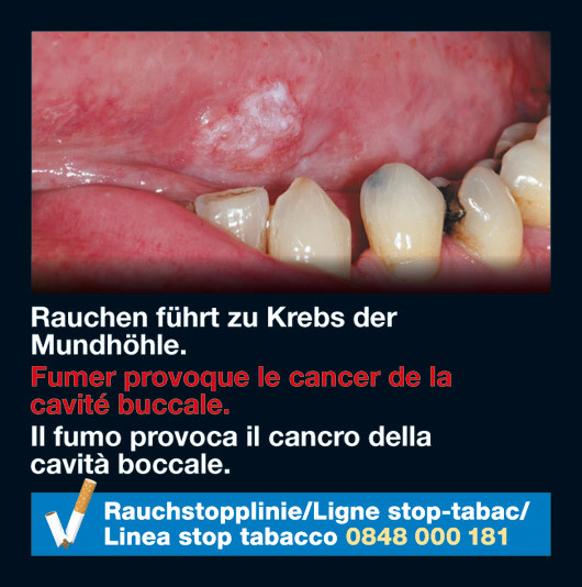 Switzerland 2010-2012 Health Effects mouth - oral cancer