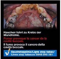Switzerland 2014-2016 Health Effects mouth - oral cancer, gross 2