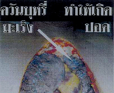 Thailand 2005 Health Effects lung - lung cancer, diseased organ, gross