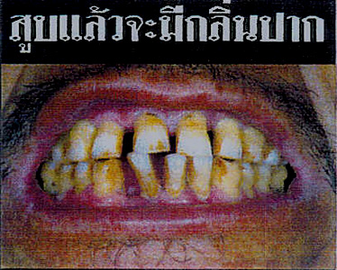 Thailand 2005 Health Effects mouth - bad breath, gross