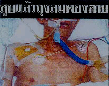 Thailand 2005 Health Effects mouth - emphysema, lived experience