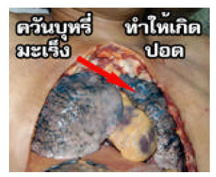 Thailand 2006 Health Effects lung - lung cancer, lived experience, gross, diseased organ