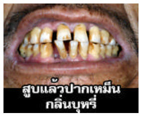 Thailand 2006 Health Effects mouth - bad breath, gross