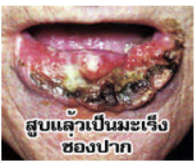 Thailand 2006 Health Effects mouth - diseased organ, oral cancer, gross