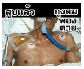 Thailand 2006 Health Effects mouth - emphysema, lived experience