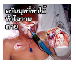 Thailand 2006 Health Effects stroke - lived experience