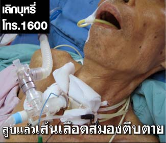 Thailand 2009 - Health Effects stroke - lived experience