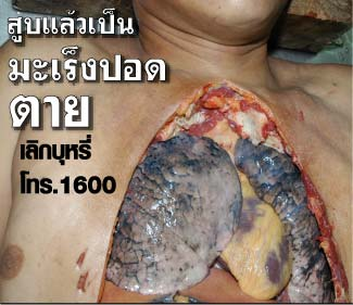 Thailand 2009 Health Effects lung - lung cancer, lived experience