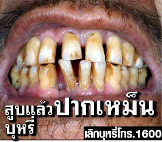 Thailand 2009 Health Effects mouth - bad breath, gross