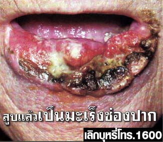 Thailand 2009 Health Effects mouth - diseased organ, oral cancer, gross