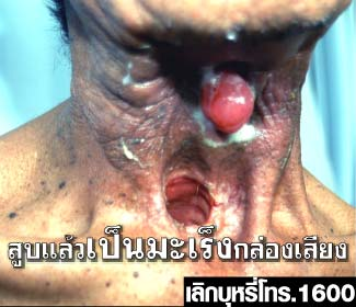Thailand 2009 Health Effects other - lived experience, throat cancer, gross