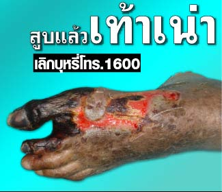 Thailand 2009 Health Effects vascular system - diseased organ, peripheral vascular disease, gross