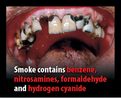 UK 2008 Consituents - diseased organ, benzene, nitrosamines, formaldehyde, hydrogen cyanide