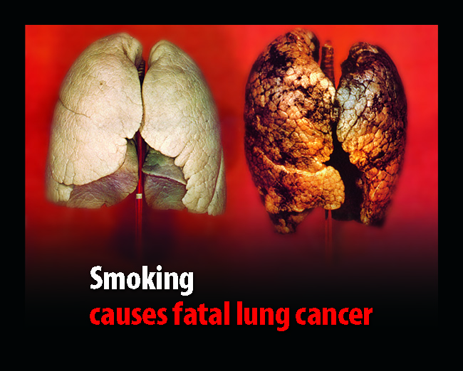 UK 2008 Health Effects lung - diseased organ, lung cancer, gross