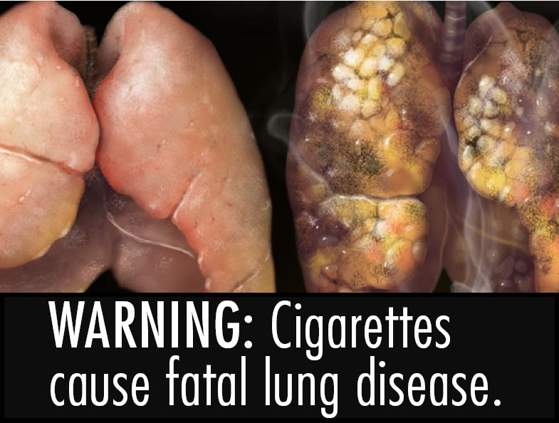 USA 2010 Health Effects lung - diseased organ, lung disease, gross