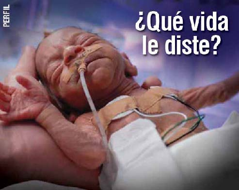 Uruguay 2008 ETS baby - premature childbirth, low birthweight, other problems